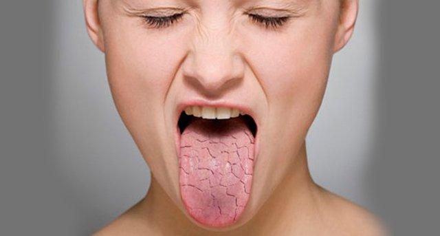 mujer con ojos cerrados sacando su lengua seca por daños que causa la deshidratación