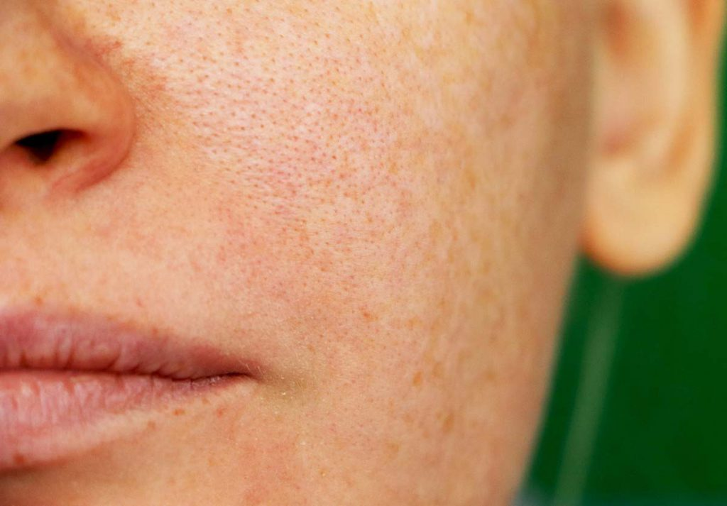 agua caliente, temperatura ideal para lavarse la cara, poros obstruidos